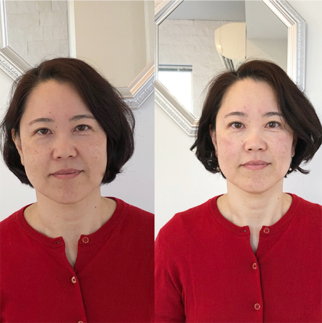 理想の顔作り黄金比トレーニングのビフォーアフターの写真